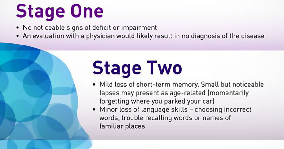 7 Stages Of Alzheimers Disease Infographic F