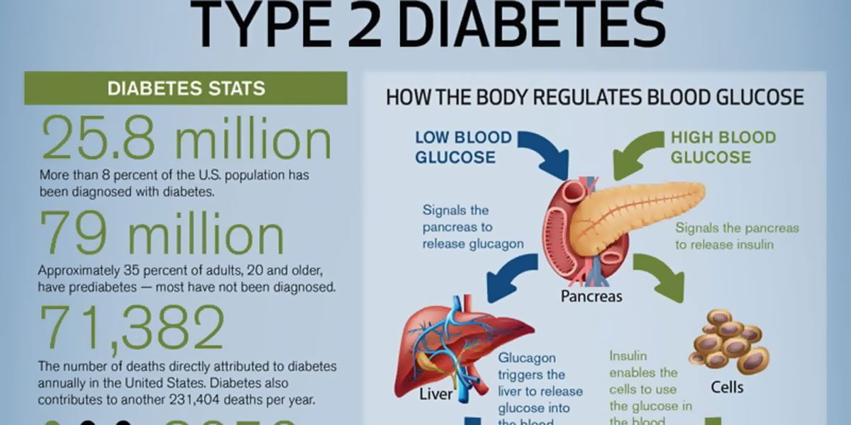 Decoding Type 2 Diabetes Infographic F