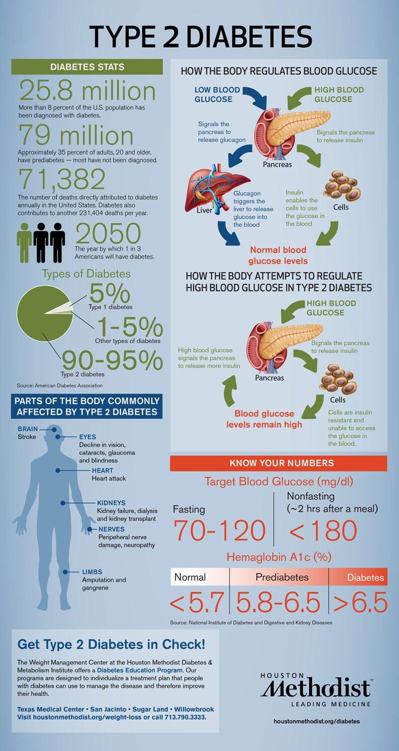 Decoding Type 2 Diabetes Infographic