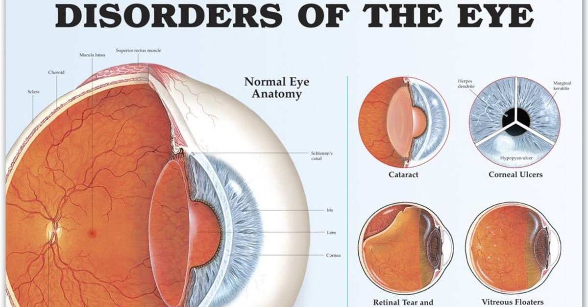Disorders Of The Eye Infographic F