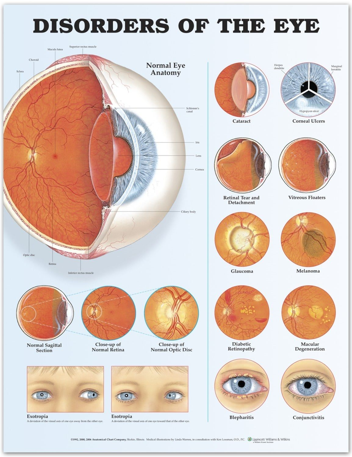 Disorders Of The Eye Infographic