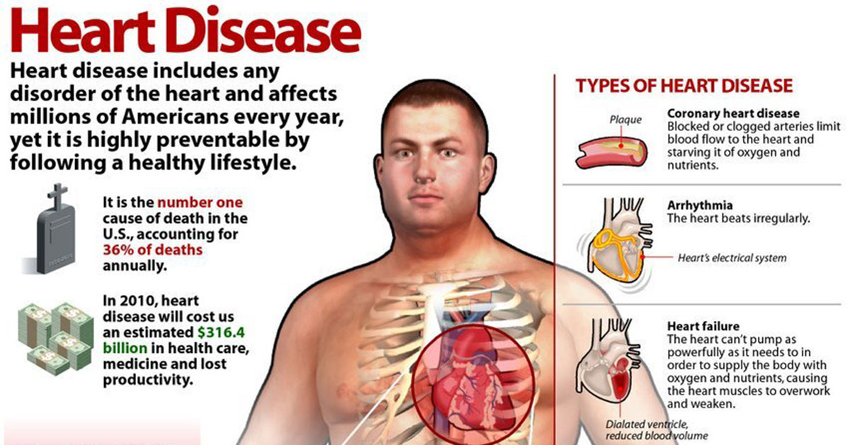 Heart Disease Infographic F