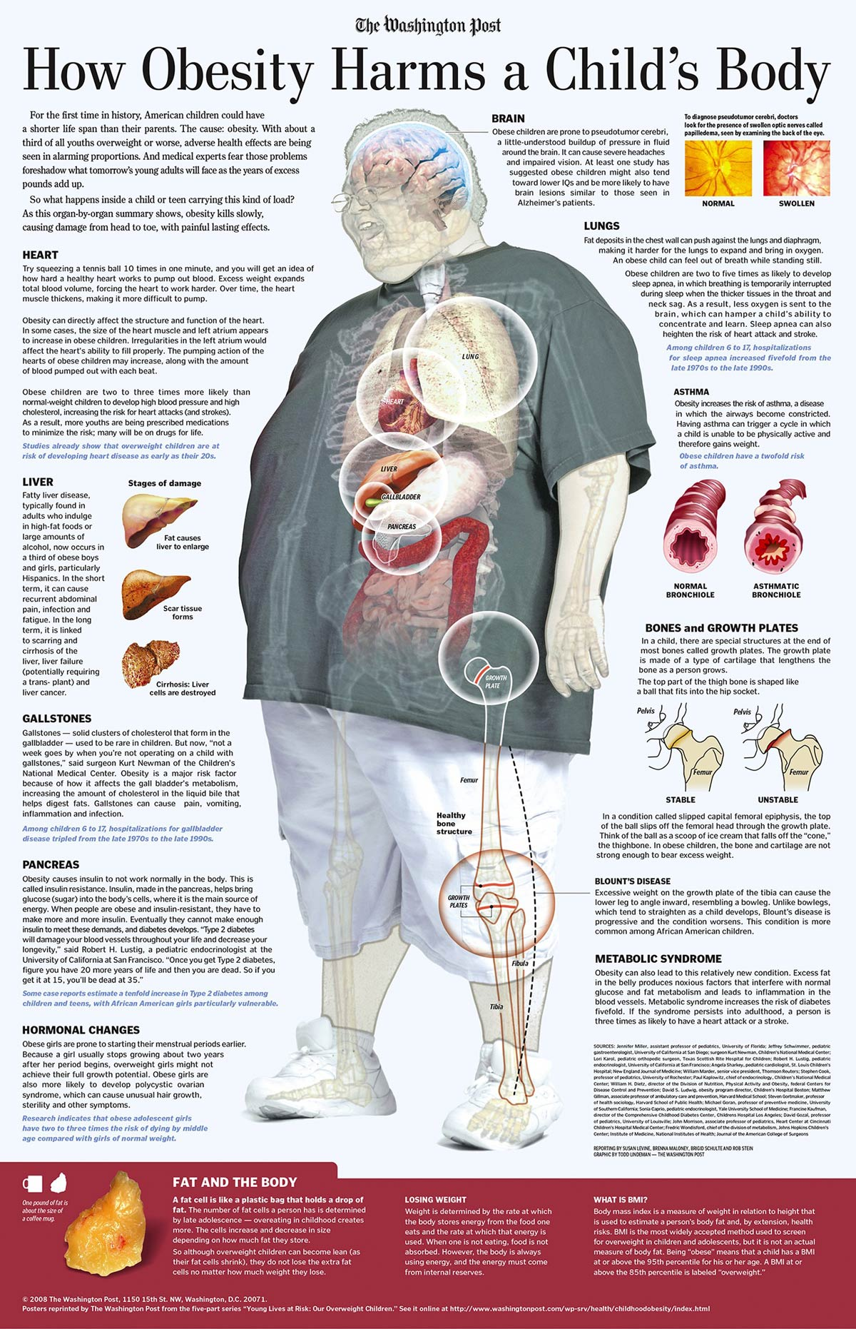 How Obesity Harms A Child'S Body Infographic
