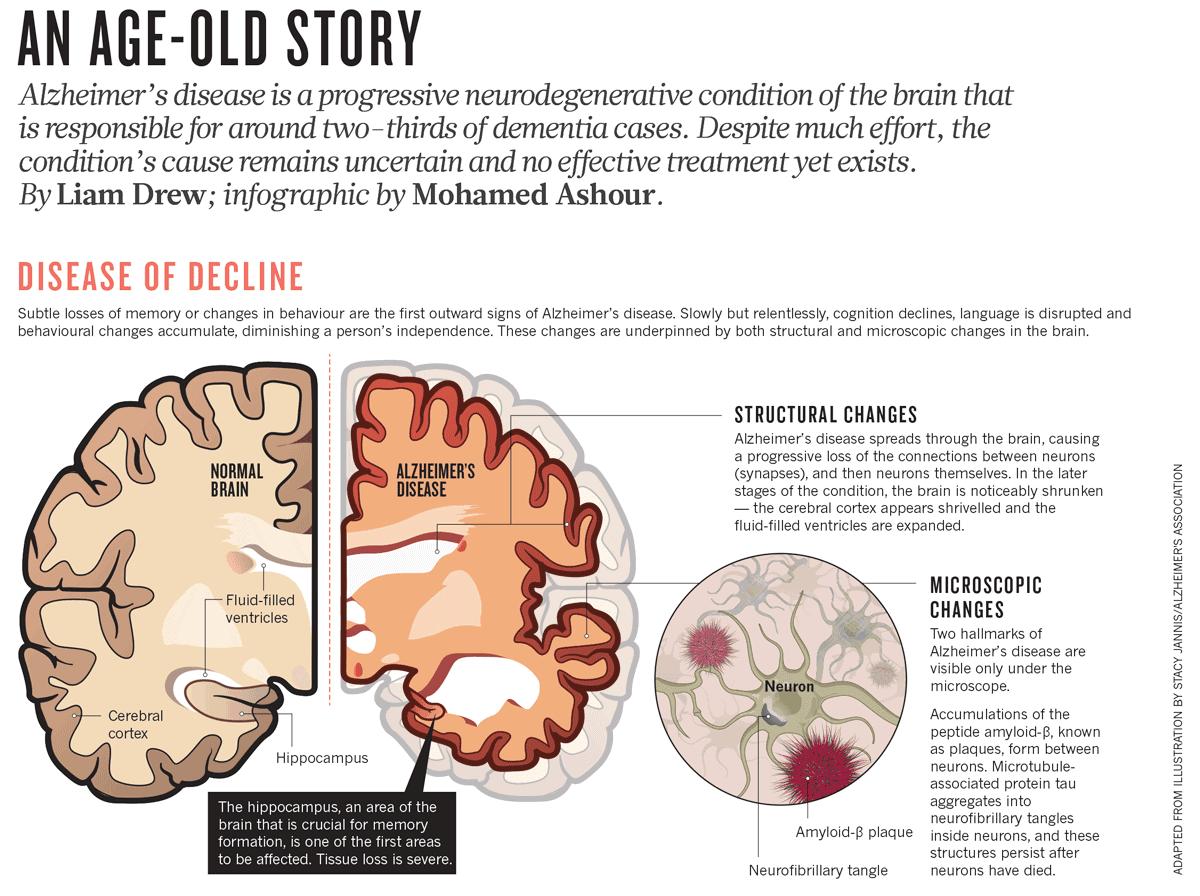 Irisin And Alzheimer's