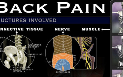 Lower Back Pain Infographic F
