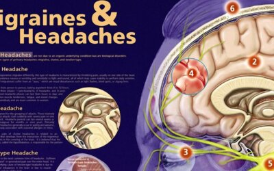 Migraines And Headaches Chart Cr