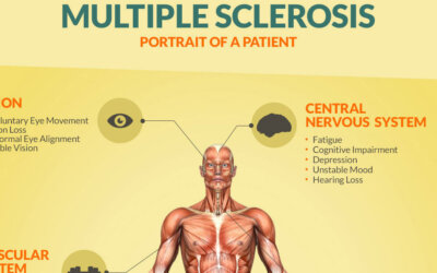 Multiple Sclerosis Infographic F