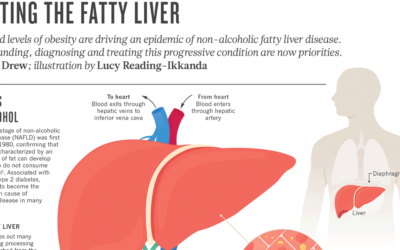 Nonalcoholic Fatty Liver Disease F