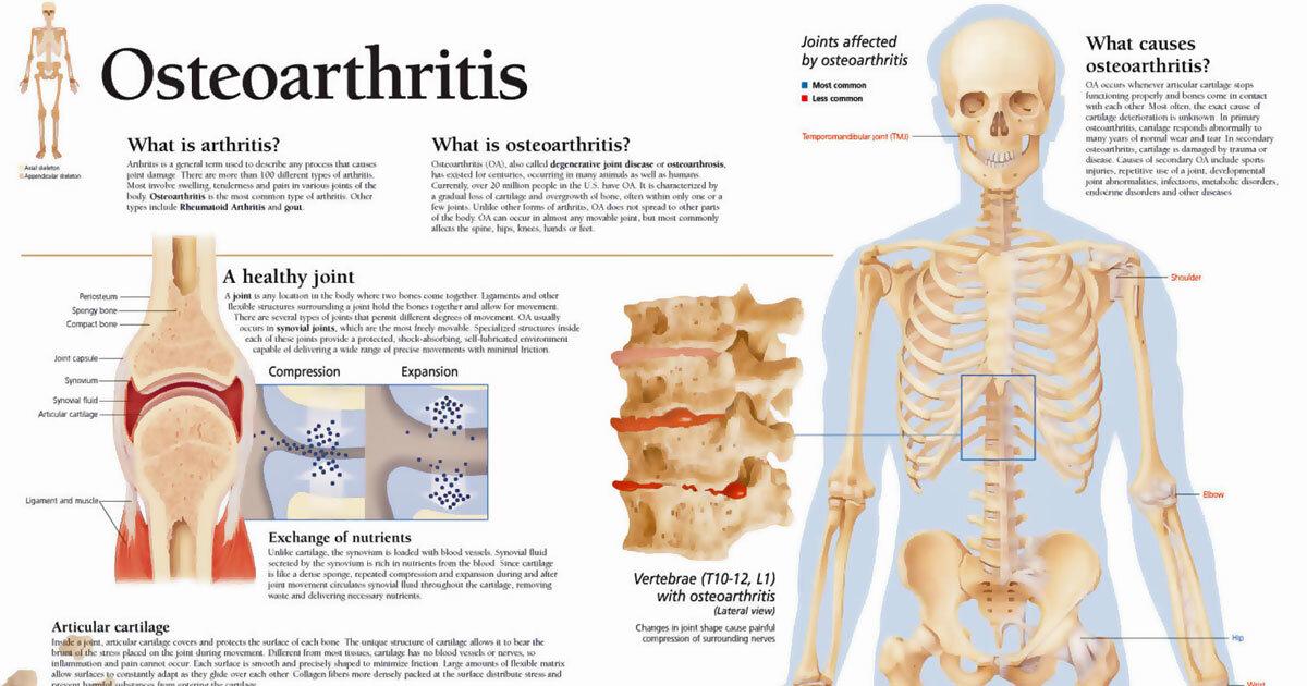 Osteoarthritis Anatomy Chart F