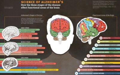 Science of Alzheimers Infographic
