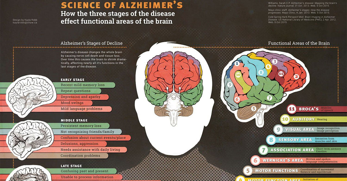 Science Of Alzheimers Infographic F