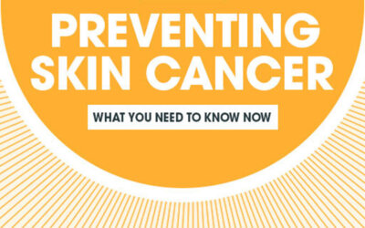 Skin Cancer Prevention Infographic F