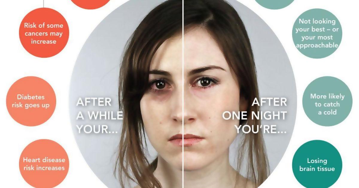 Sleep Loss Infographic F