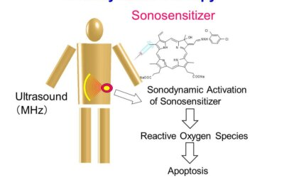 Sonodynamic Therapy