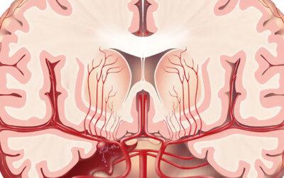 Subarachnoid Hemorrhage F