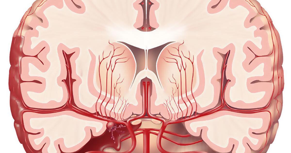 Exercise Helps To Reduce Risk Of Subarachnoid Hemorrhage