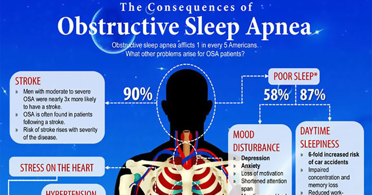 Research Has Found Sleep Apnea Might Increase Risk of Silent Stroke