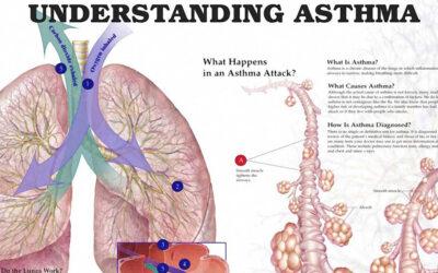Understanding Asthma Chart F