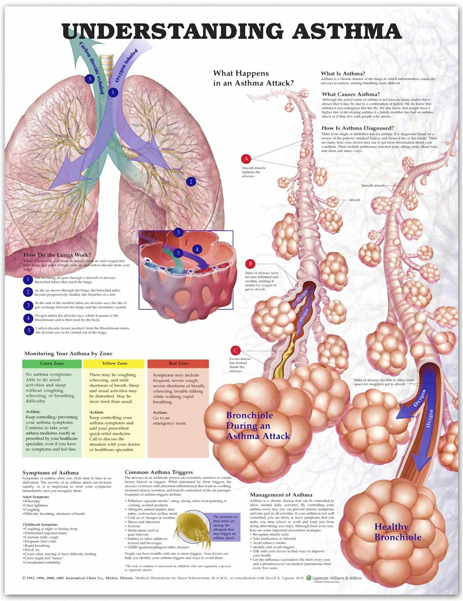 Understanding Asthma Chart