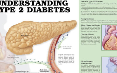 Understanding Diabetes Infographic F