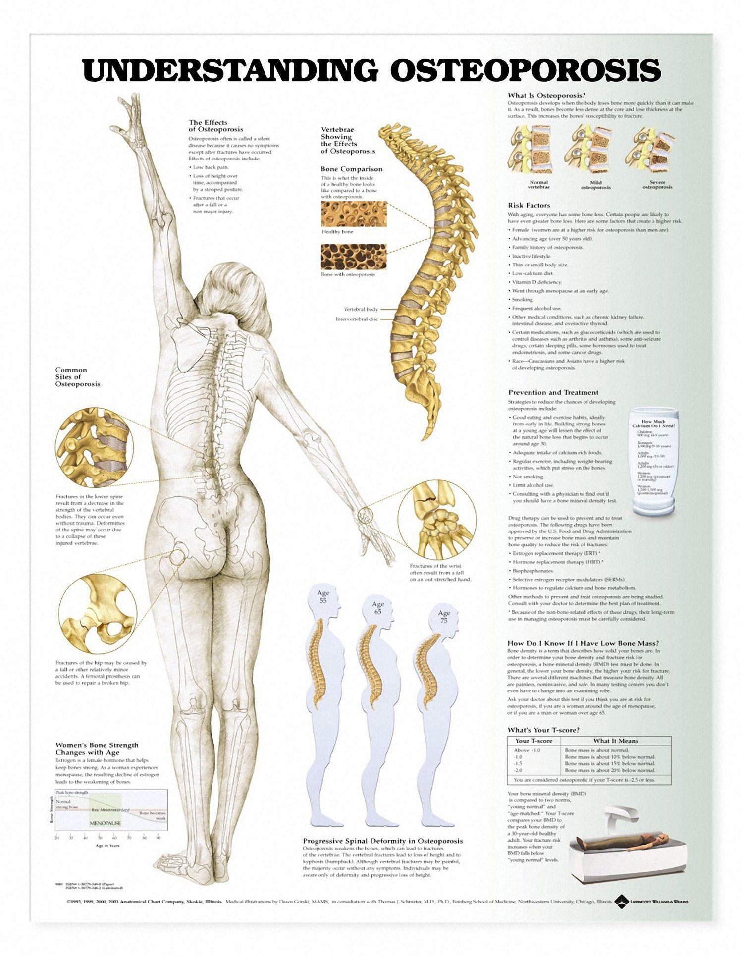 Understanding Osteoporosis Chart