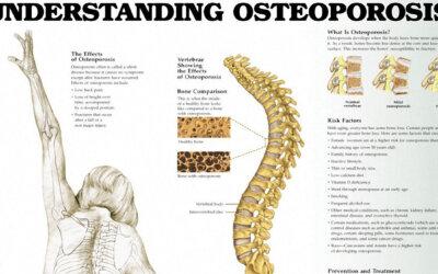 Understanding Osteoporosis Chart Cr