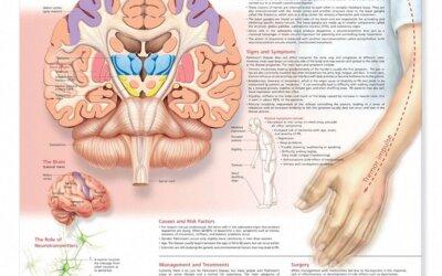 Understanding Parkinsons Disease Chart