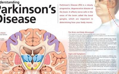 Understanding Parkinsons Disease Chart F