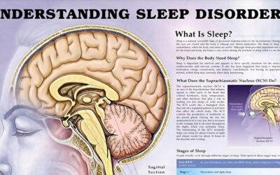 Understanding Sleep Disorders Chart F