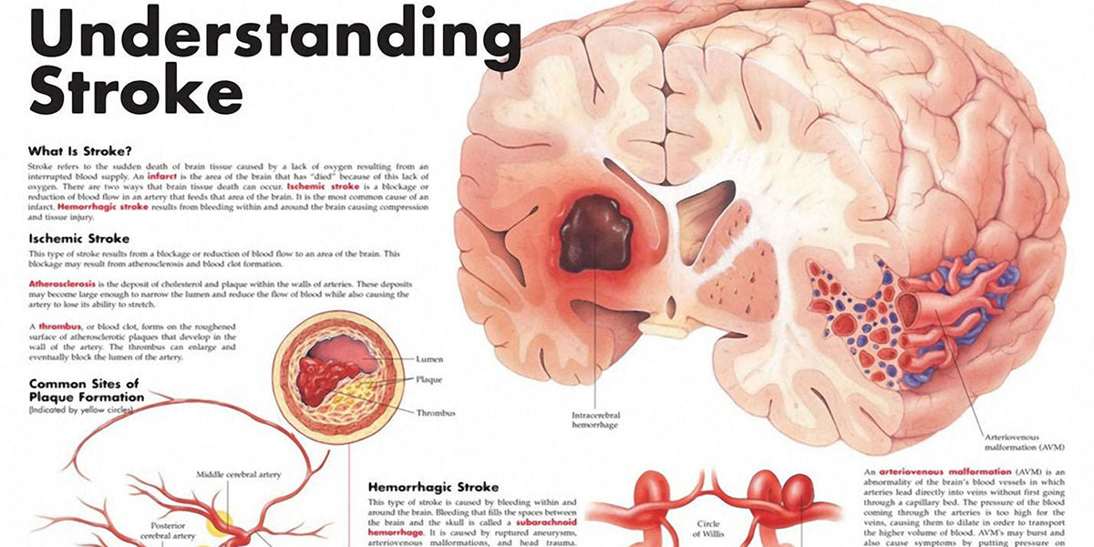 Understanding Stroke Chart F