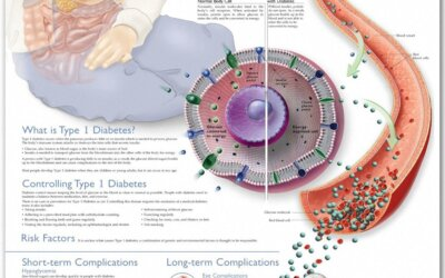 Understanding Type 1 Diabetes Chart