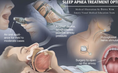 What Is Sleep Apnea Infographic F