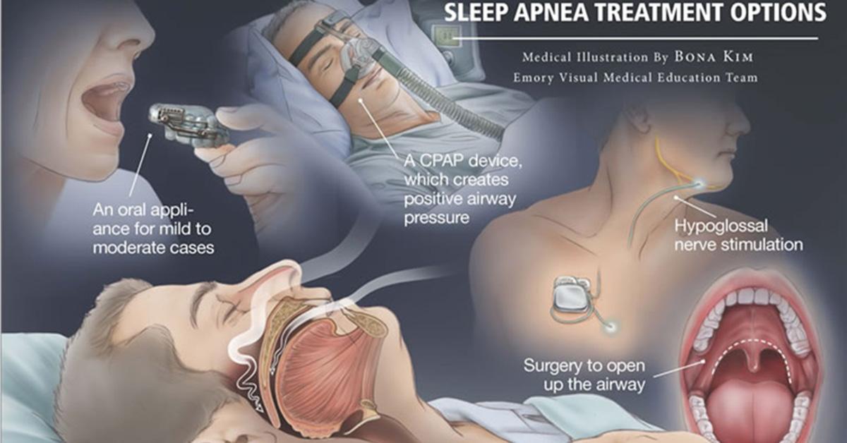 What Is Sleep Apnea Infographic F