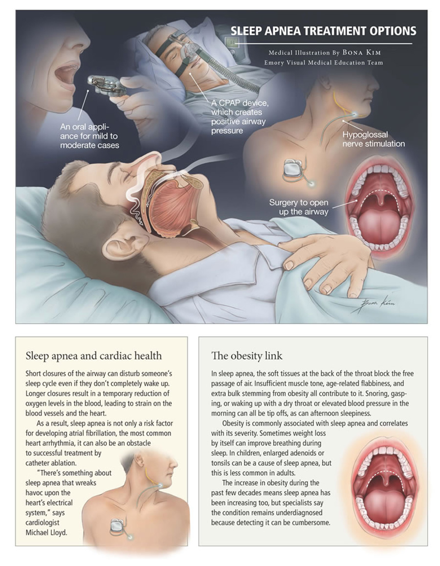 What is Sleep Apnea Infographic