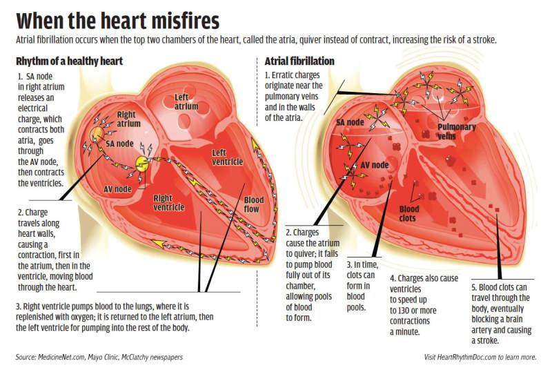 दिल की अनियमित धड़कन