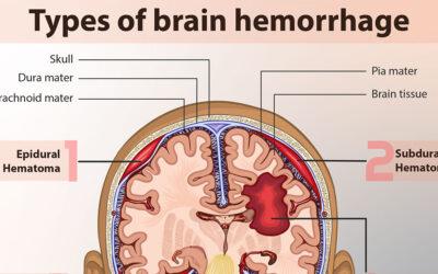 Different Types Of Brain Hemorrhage F